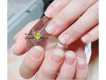 ネイルサロン スマイルニコ(Smile nico)の雰囲気(■人気■自分の爪が伸びたような自爪風深爪矯正できます!)