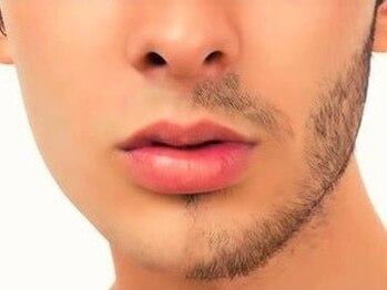 ボディーステップ(BODY STEP)の写真/【毎日快適生活★ひげ剃りの時間を短縮しませんか?☆】お気軽にご相談下さい。