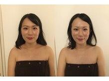 【ビフォーアフター写真あり】全年齢がエイジングケア効果を実感する頭蓋骨小顔矯正