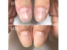 爪のお悩み、コンプレックスは爪のスペシャリストにお任せ下さい