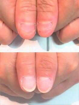 ハニーズネイル(Honey's Nail)の写真/長さ出し込み♪深爪矯正+ヌーディカラー+ささくれケア+ハンドケア付き¥11960~!昼割クーポンもアリ♪