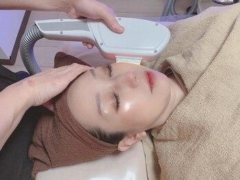 トータルビューティーサロン キレイ(綺rei)の写真/人目につきやすいお顔のうぶ毛。毛穴もキュッと引締めすっぴん肌☆くすみも改善し明るいお肌に♪