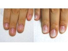 ミューズネイル(Myu's Nail)の雰囲気(爪の形は変えられます!深爪や巻いてる爪など爪の育成が得意です)