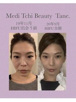 メディテクビューティータネ(Medi Tech Beauty Tane.)/圧倒的結果!ハイフ☆全顔ダブル