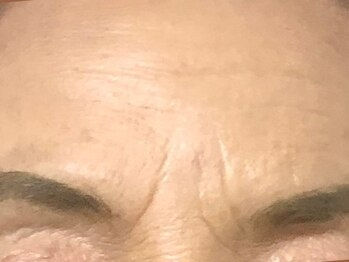 アキの写真/シミケア&額シワ・目の周りの小ジワ改善★顔筋3D小顔リフトアップ+高濃度美容液で艶肌へ!収斂効果も◎