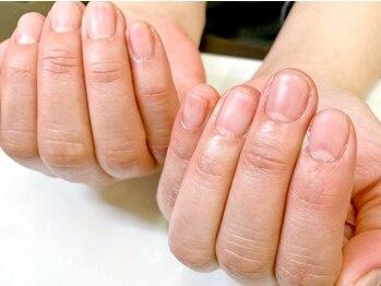 ヴィーナネイル 呉店(VinaNail)の写真/クリアジェルで自爪補強!『薄く割れ易い・深爪』等のお悩みに*カラーなしのツヤツヤ透明仕上げ♪