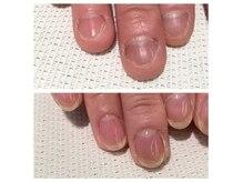 深爪矯正*お爪は綺麗に変わっていきます*