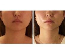 アイスパ プリンチ(EYE SPA PRINCCI)の雰囲気(皮膚伸びゆるみも細胞喜ぶプル肌エラ筋集中ケアでV顔ライン小顔)