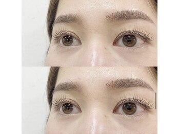 ガーランドアイラッシュ(Garland eyelash)/Madonna care lift