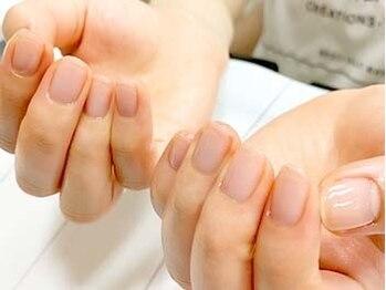 ヴィーナネイル ゆめタウン東広島店(VinaNail)の写真/クリアジェルで自爪補強!『薄く割れ易い・深爪』等のお悩みに*カラーなしのツヤツヤ透明仕上げ♪
