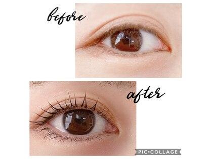 AVANCE Eye&Esthetic
