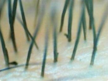 アイラッシュサロンデイシー(Deicy)/まつ毛の根元の汚れを吸着ケア