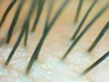 アイラッシュサロンデイシー(Deicy)/グルーや花粉等の刺激から保護