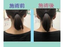 ラルジュ 江坂(Large)の雰囲気(右の首から肩の歪み矯正前・後の比較画像)