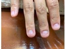 ティアリーネイル(tiary nail)の雰囲気(深爪にお悩みの方。お気軽にお問い合わせください。)