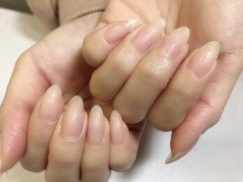 アッカネイル(acca nail)の写真/爪を美しく育てる育爪メニュー導入!爪を1番に考えたパラジェル登録店*フォルム悩み/深爪も見違える美しさに