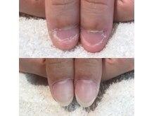 ハニーズネイル(Honey's Nail)の雰囲気(深爪矯正コース 美爪育成の自爪です。3ヶ月経過のお写真です。)