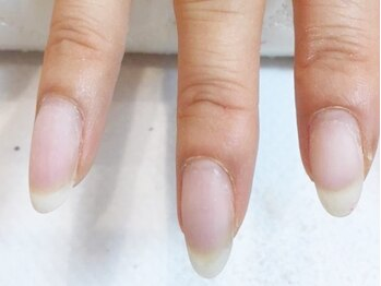 ラルーナ(La Luna)の写真/爪の薄さ・弱いと感じる方に、健康とモチを考えたフィルイン技術で美しい手元へ♪フィルイン&アート¥8800