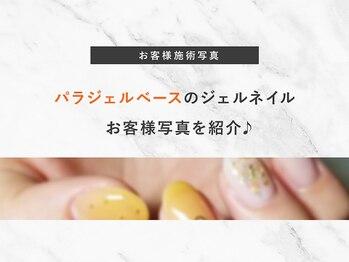 カルフール ロコ ネイル 草加西口店(Carrefour LOCO nail)/パラジェルベースお客様写真紹介
