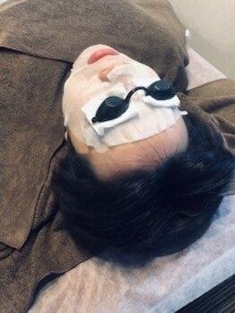 メンズハーニーズ(Men's Harneys)の写真/髭剃りによる肌荒れやごわつきを徹底改善!【光フェイシャル】男女問わず好印象なスベスベ肌をGET★
