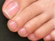 ネイルセラピーサロン プラムジュース(Nail Therapy Salon Plum Juice)の雰囲気(足の指や爪も美しく♪【フットケア¥3780】ベースコート付き☆)