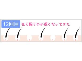 ヴィオール 名古屋栄店(VIOR)/12回目 月に1度の自己処理要