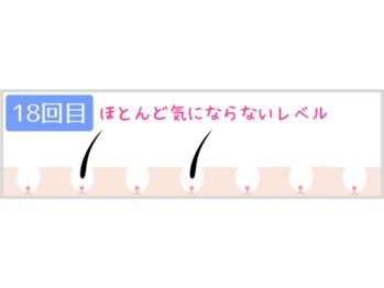 ヴィオール 名古屋栄店(VIOR)/18回目 約90パーセント終了