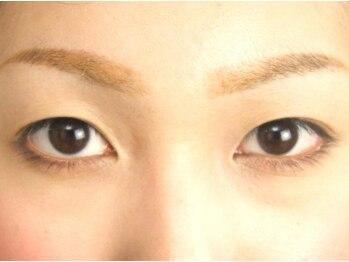ロータスアイラッシュ(LOTUS eyelash)/Before★