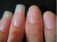 ダメージを受けた自爪の補修・回復のお手伝い..ご相談ください。