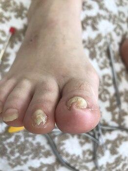 足のケア アンド 巻き爪 エムズ 白金通り店(M's)/巻き爪矯正1