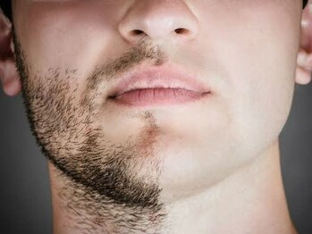 ミント(mint)の写真/【メンズ脱毛・男の身だしなみに】毎朝、ヒゲ剃り負けしやすい方にオススメ!朝の自己処理を時短に!