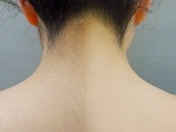 ファストエステ オカオ(Okao)の写真/【実は結構見られてる、後ろ!?】お手入れのしづらい背中やうなじの後ろ姿もケアして抜かりなくキレイに♪