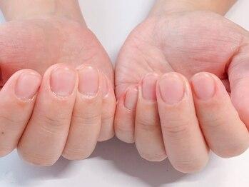 健康美爪 ネイルアンドアイラッシュの写真/爪の角質もケアでスッキリ指先に♪深い爪、傷んだ爪も改善&解消◎《ハンドケア》に特化したサロン♪