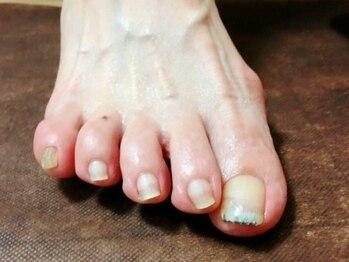 """健康美爪 ネイルアンドアイラッシュの写真/【爪にコンプレックス、お悩みがある方は是非""""健康美爪ネイル&アイラッシュ""""に◎様々な爪のお悩みを解消!"""