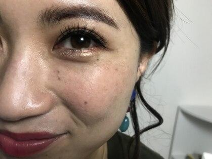 ビューティサロンエクレル (Beauty Salon Eclair)の写真