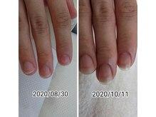 深刻な爪のお悩みをお持ちの方もご相談下さい。