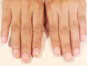 プリナチュールの写真/二枚爪や薄爪、ジェルで爪に悩みのある方のためのサロン◎自爪専門店で爪の悩みを解消、美しい自爪へ♪