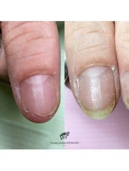 ポミグラニットフィンガーズ(Pomegranate Fingers)/爪を噛んでしまう深爪さん