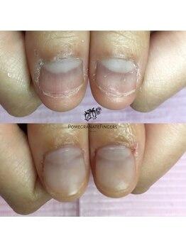 ポミグラニットフィンガーズ(Pomegranate Fingers)/見違えるほど成長な深爪さん