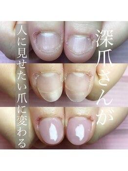 ポミグラニットフィンガーズ(Pomegranate Fingers)/その日のうちに美爪になれる