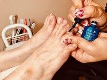 ジェルは自爪を削らない爪に優しいパラジェル使用★フットシェラック・巻き爪矯正BSブレイスなど幅広く提供