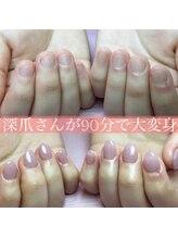ポミグラニットフィンガーズ(Pomegranate Fingers)/深爪さんがその日に美爪に