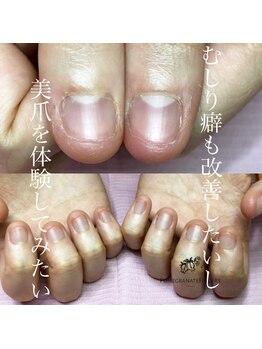 ポミグラニットフィンガーズ(Pomegranate Fingers)/私の爪でも大丈夫?
