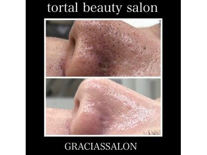 グラシアス サロン(GRACIAS SALON)の写真