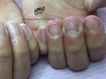 ポミグラニットフィンガーズ(Pomegranate Fingers)/噛む爪バラバラ不揃いを整えたい