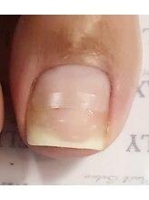 BSブレイスクイック♪内側に巻き込み変形している爪を、平らな美しい形へ!!☆