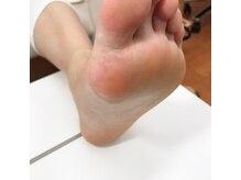 ネイルアトリエ ボン(nail atelier bon)/スパルーチェ 足裏角質ケア