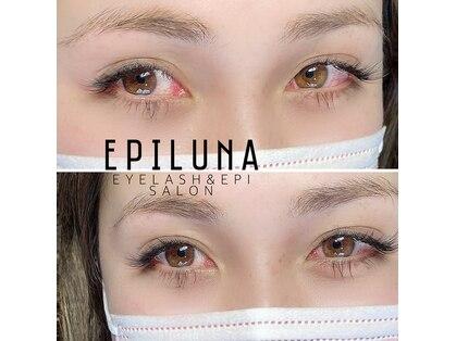 エピルナの写真