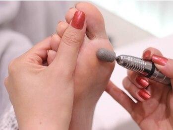 ヴァンネイル(VINGT NAIL nail&eye beauty)の写真/【ドイツ式角質ケア初回¥3500】かかと,タコ,魚の目に6段階ケア!乾燥によるひび割れにも!店内衛生管理◎