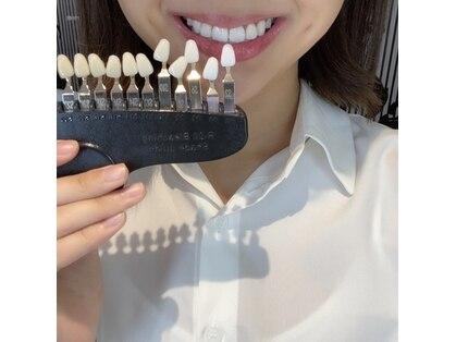 【歯のホワイトニング専門店】 WhiteningBAR 仙台店 【ホワイトニングバー】